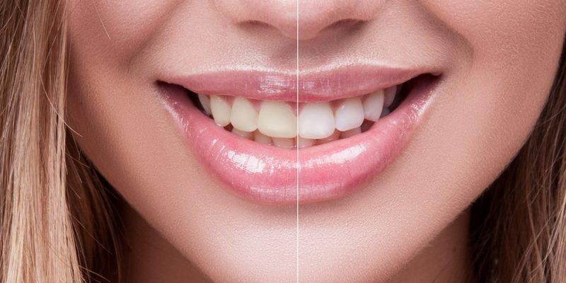 عوارض سفید کردن دندان ها