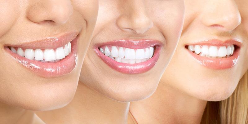 انواع روش های اصلاح طرح لبخند