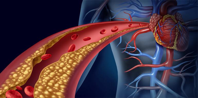 جینسینگ کاهش دهنده کلسترول
