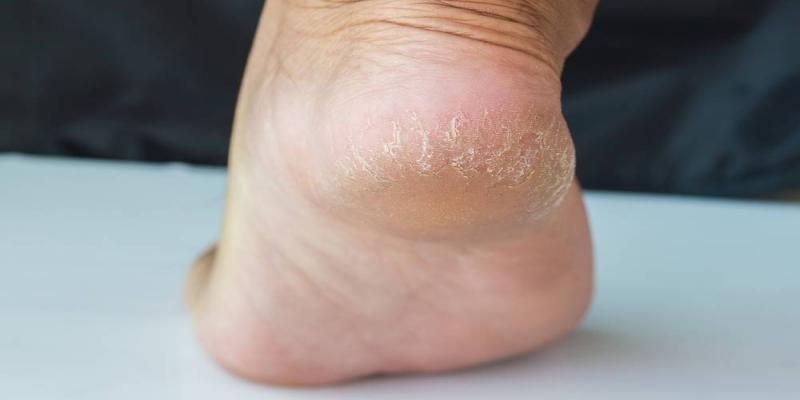درمان ترک پاشنه پا با روغن کرچک