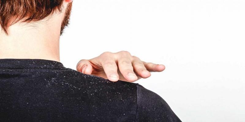 درمان شوره سر با روغن کرچک