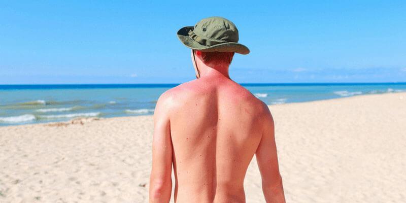 تسکین آفتاب سوختگی به کمک روغن کرچک