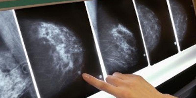 نقش پرتو درمانی در درمان سرطان سینه