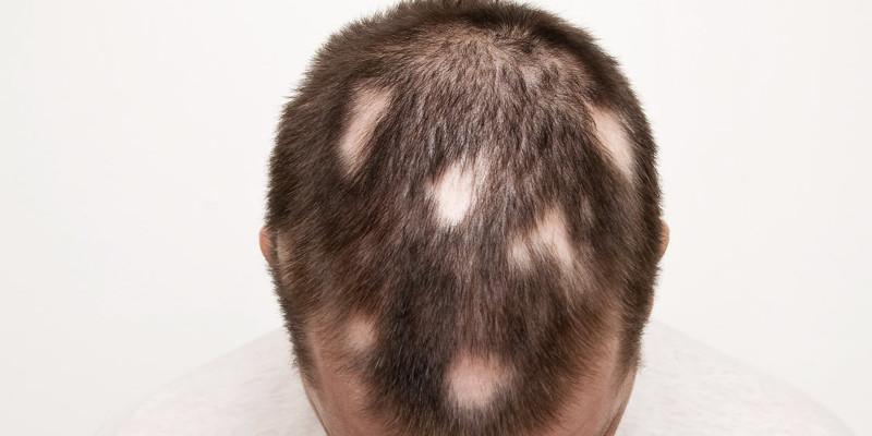 پیوند مو برای ریزش مو سکه ای