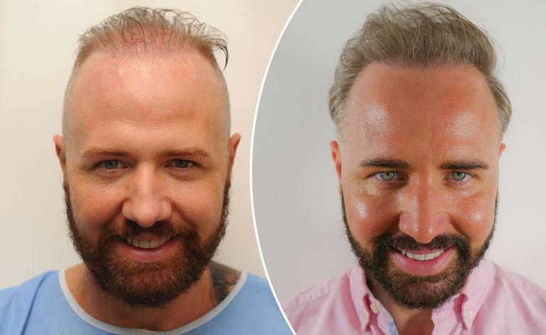 سن مناسب برای کاشت مو