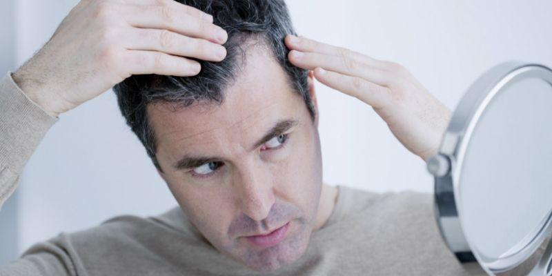 تاثیر کمبود ویتامین D بر روی ریزش مو