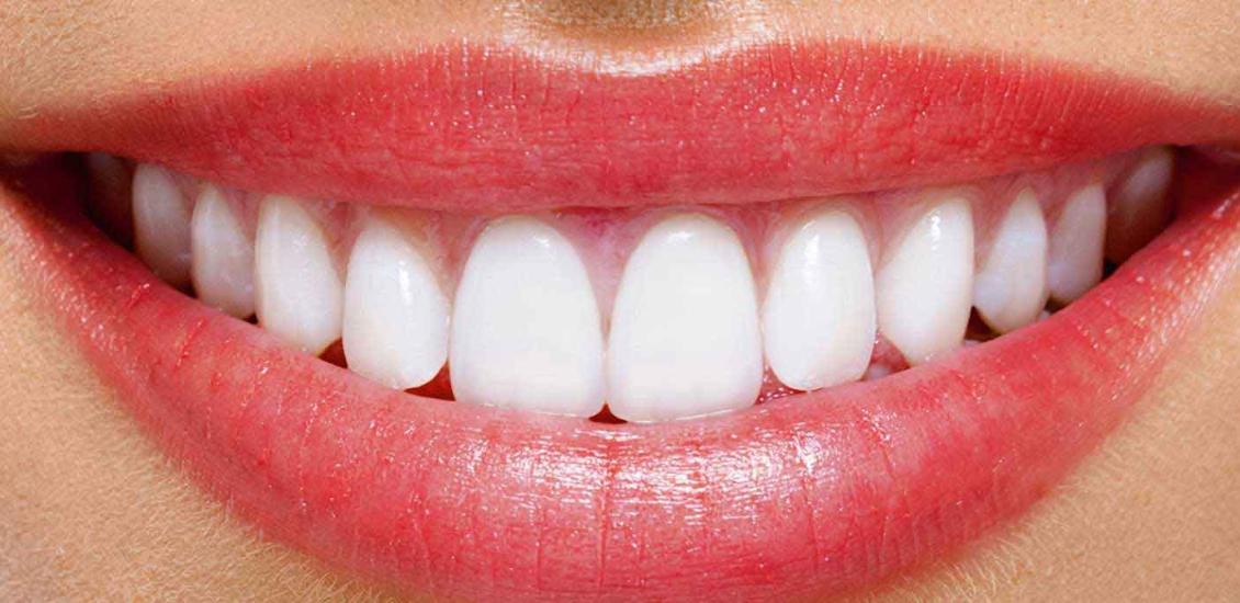 لبخند هالیوودی با اصلاح طرح لبخند