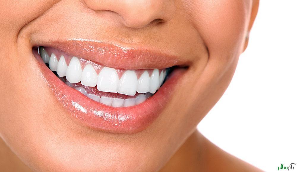 خواص انجیر خشک در سلامت دهان و دندان